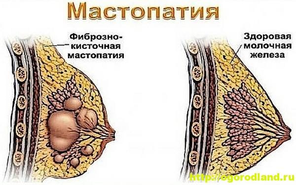 Кистозно-фиброзная мастопатия 3