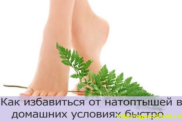 Натоптыши на ногах. Как избавиться от натоптышей 24