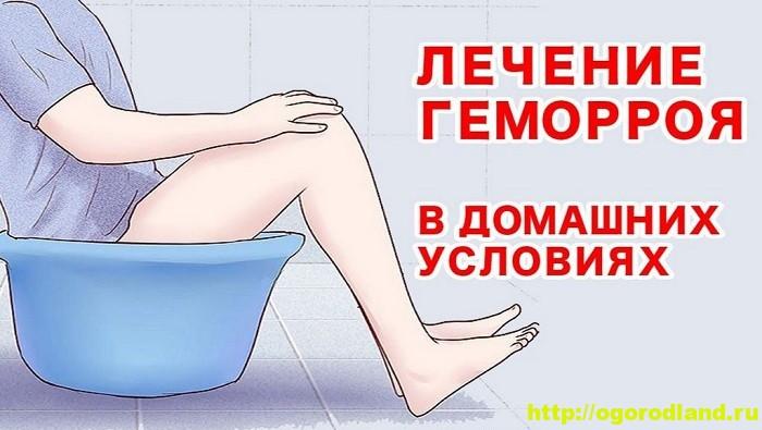 Лечение геморроя: подборка народных рецептов